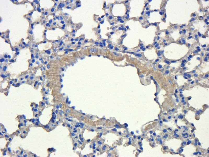 Immunohistochemical staining of mouse lung tissue using CD31 antibody (dilution of primary antibody - 1:200)