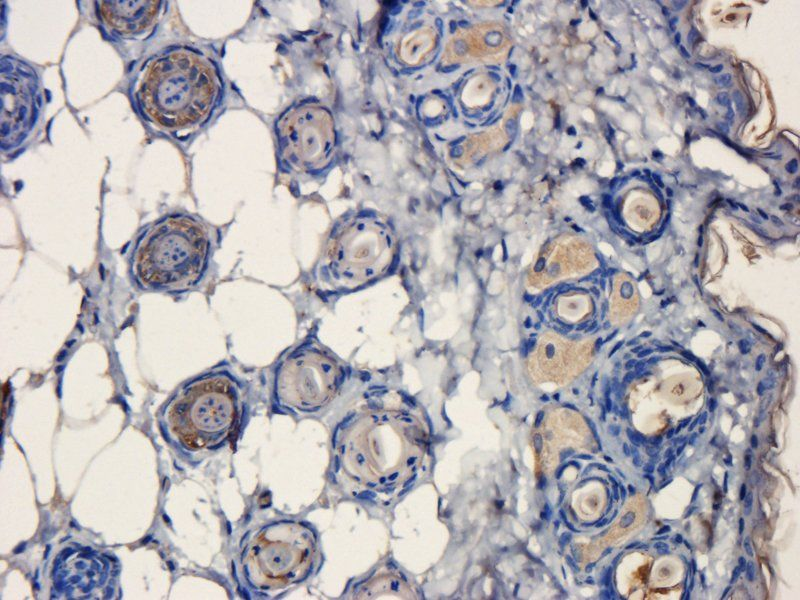 Immunohistochemical staining of paraffin embedded mouse skin tissue using CD31 antibody (primary antibody at 1:200)