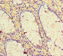 Immunohistochemical staining of human colon cancer using CD34 antibody