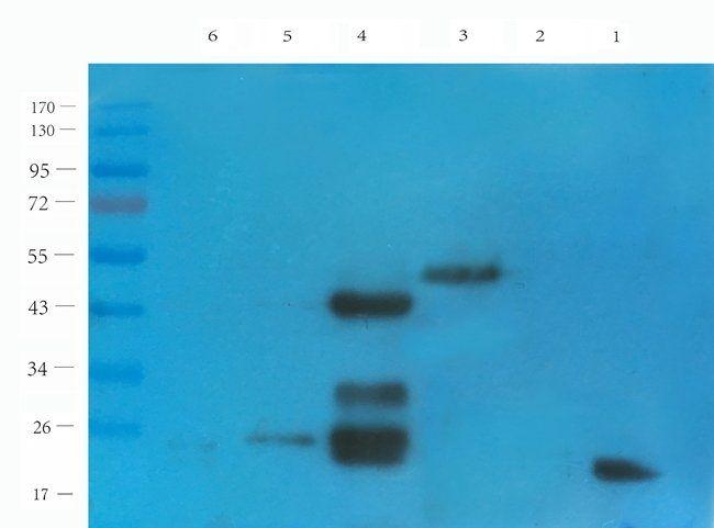 WB analysis of mouse spleen (lane 1), mouse stomach (lane 2), rat pancreas(lane 3), rat liver (lane 4), rat ovary (lane 5), rat bladder (lane 6) using CD38 antibody (1 ug/ml)