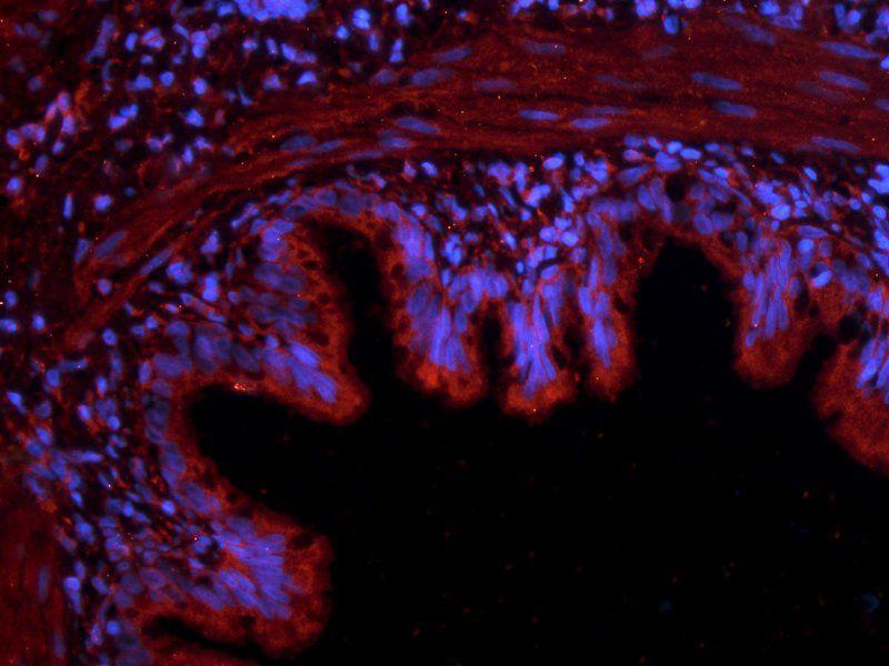 IF analysis of rat lung tissue using Reelin antibody (2.5 ug/ml)