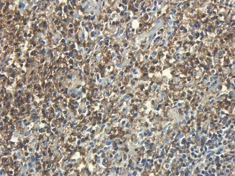 IHC-P staining of pig spleen tissue using CD45 antibody (2.5 ug/ml)