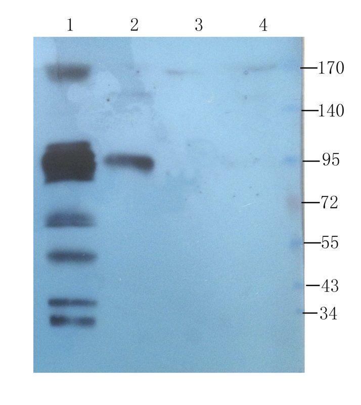 WB analysis of rat pancreas (lane 1), rat large intestines (lane 2), rat heart (lane 3), human breast cancer (lane 4) using CD45 antibody (1 ug/ml)