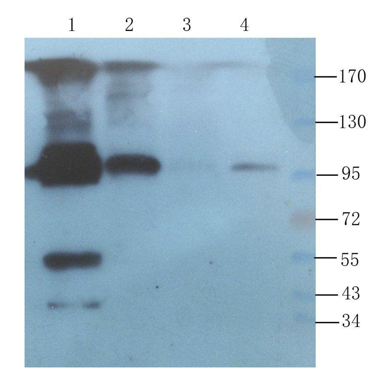 WB analysis of mouse liver (lane 1), rat lung (lane 2), rat uterus (lane 3), rat spleen (lane 4) using CD45 antibody (1 ug/ml)