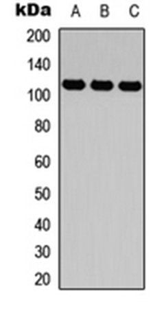 Western blot analysis of HEK293T (Lane1), Raw264.7 (Lane2), H9C2 (Lane3) whole cell using CD49d antibody
