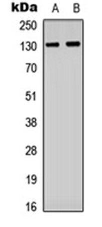 Western blot analysis of HUVEC (Lane1), Raw264.7 (Lane2) whole cell using CD61 (phospho-Y773) antibody