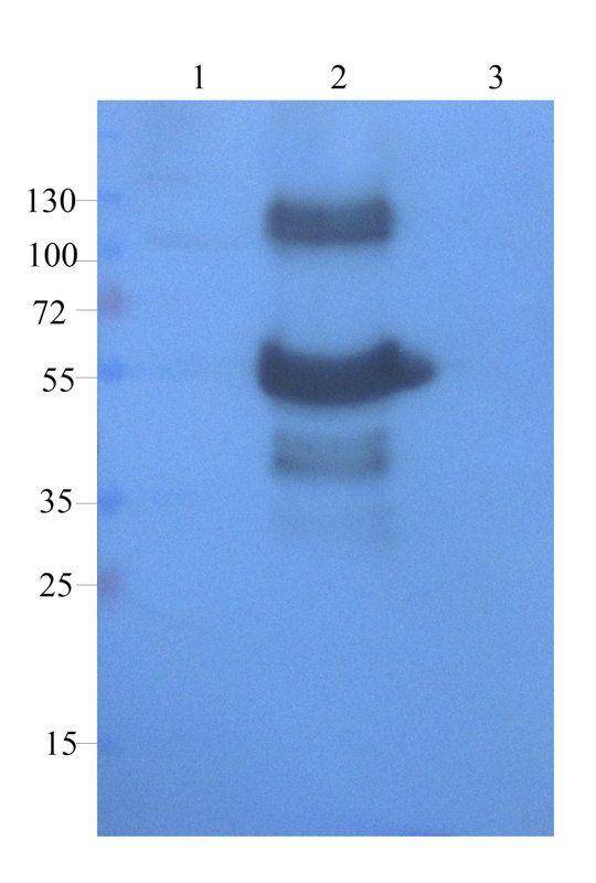 WB analysis of rat large intestines (lane 1), rat uterus (lane 2), human breast cancer (lane 3) using CD68 antibody (1 ug/ml)