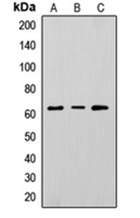 Western blot analysis of HepG2 (Lane1), K562 (Lane2), A375 (Lane3) whole cell using CD73 antibody