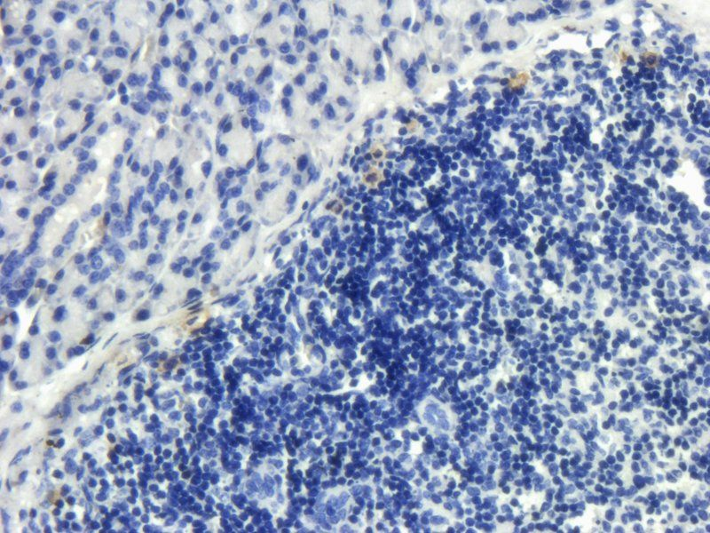 IHC-P image of rat spleen tissue using anti-CD8 (2.5 ug/ml)