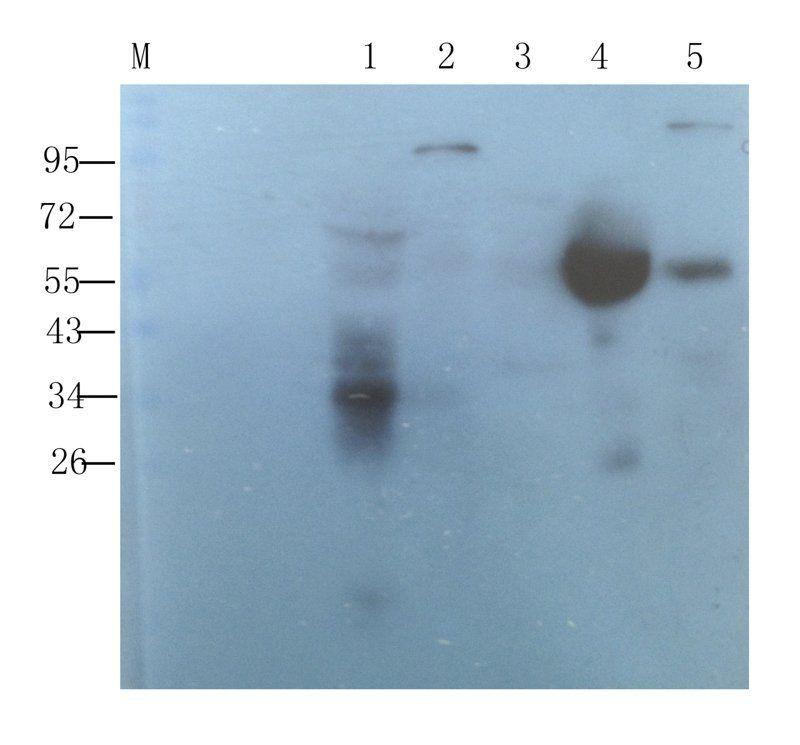 WB analysis of rat thymus (lane 1), rat spleen (lane 2), rat brain (lane 3), human breast cancer (lane 4), human endometrial cancer (lane 5) using CD8 antibody (1 ug/ml)