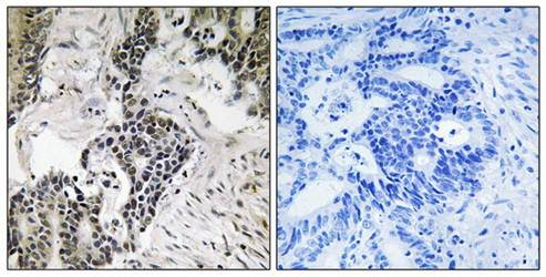 Immunohistochemical analysis of formalin-fixed and paraffin-embedded human colon carcinoma tissue using CDC25C (phospho-Ser198) antibody