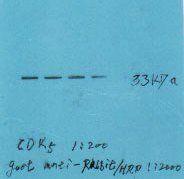 Western Blot of liver tissue with CDK5 antibody (band at 33 kDa)