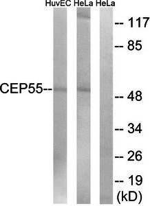 Western blot analysis of extracts from HUVEC cells and HeLa cells using CEP55 antibody