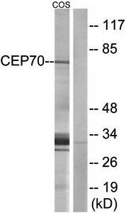 Western blot analysis of extracts from COS cells using CEP70 antibody