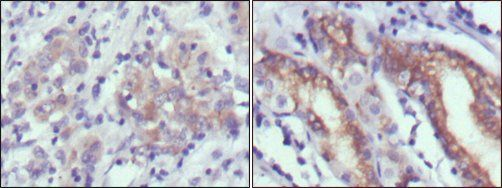 Immunohistochemical analysis of paraffin-embedded human gastric cancer (left) and normal gastric tissues (right) using CER1 antibody
