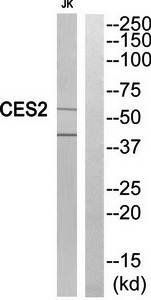 Western blot analysis of extracts from Jurkat cells using CES2 antibody