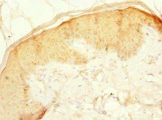 Immunohistochemical staining of human skin tissue using CFAP20 antibody