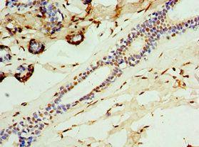 Immunohistochemistry of paraffin-embedded human breast cancer tissue using CGRP antibody