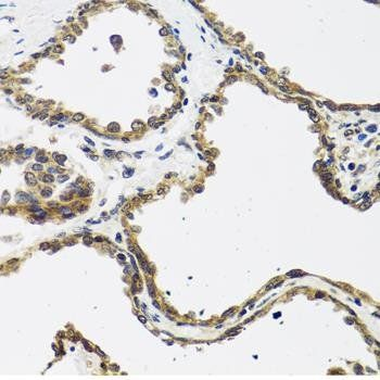 Immunohistochemical staining of rat heart tissue using CGRP antibody (dilution of 1:100)