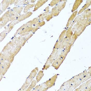 Immunohistochemical staining of human prostate tissue using CGRP antibody (dilution of 1:100)