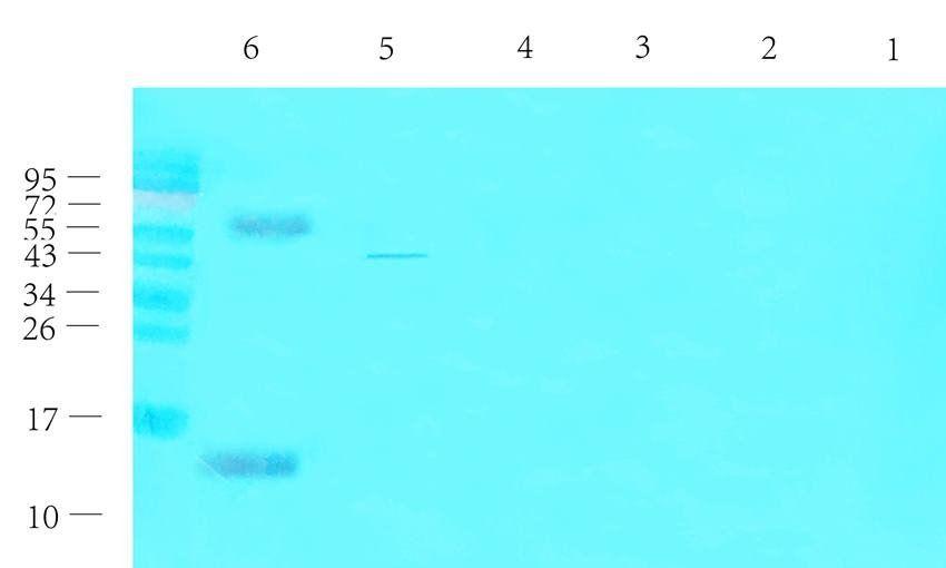 Western blot analysis of rat thyroid (lane 1), rat liver (lane 2), rat pancreas (lane 3), mouse brain (lane 4), mouse spinal cord (lane 5), human thyroid cancer (lane 6) using CGRP antibody (1 ug/ml)