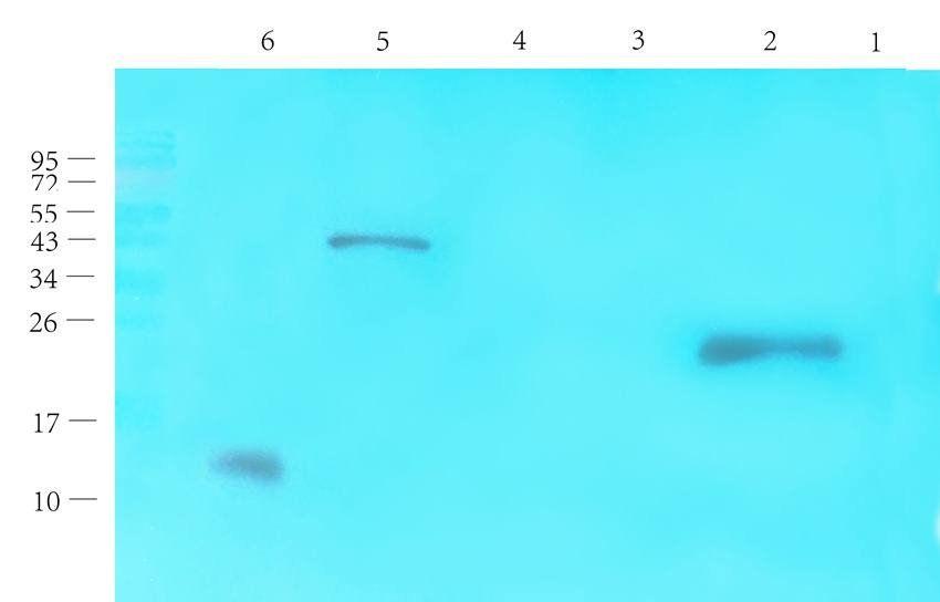 WB analysis of rat thyroid (lane 1), rat liver (lane 2), rat pancreas (lane 3), mouse brain (lane 4), mouse spinal cord (lane 5), human thyroid cancer (lane 6) using CGRP antibody (1 ug/ml)