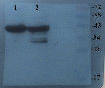 Western blot analysis of Mouse brain (Lane 1), Rat epencephalon (Lane 2) using CHRNA7 antibody (dilution at 2 ug/ml)