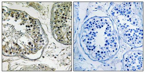 Immunohistochemical analysis of formalin-fixed and paraffin-embedded human testis tissue using CHST13 antibody