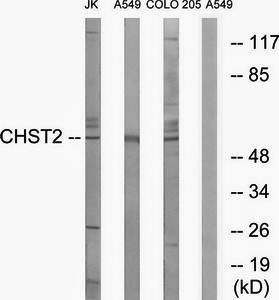 Western blot analysis of extracts from Jurkat cells, A549 cells and COLO cells using CHST2 antibody