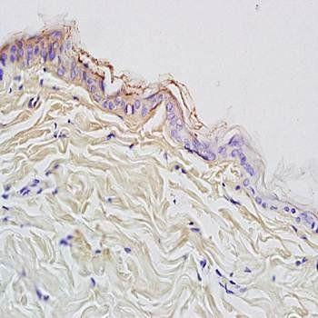 Immunohistochemical analysis of formalin-fixed and paraffin embedded rat skin tissue using CK10 antibody