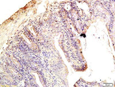 Immunohistochemical staining of rat intestine tissue using Claudin 1 antibody.
