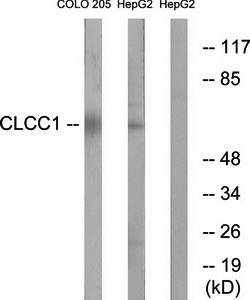 Western blot analysis of extracts from COLO cells and HepG2 cells using CLCC1 antibody