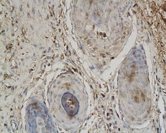 Immunohistochemical analysis of paraffin-embedded rabbit ear wound tissue using Collagen III antibody