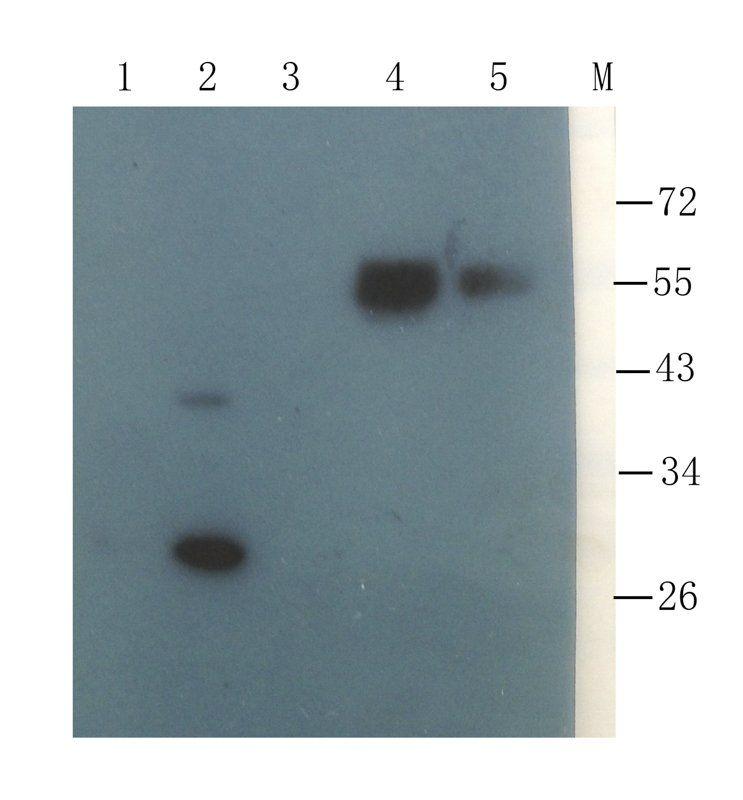 Western blot analysis of  mouse spinal cord (lane 1), mouse liver (lane 2), mouse pancreas (lane 3), human breast cancer (lane 4),  human mammary fibroma (lane 5) using Collagen X antibody (1 ug/ml)