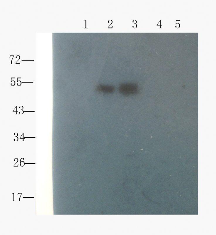 WB analysis of  mouse spinal cord (lane 1), mouse liver (lane 2), mouse pancreas (lane 3), human breast cancer (lane 4),  human mammary fibroma (lane 5) using Collagen X antibody (1 ug/ml)