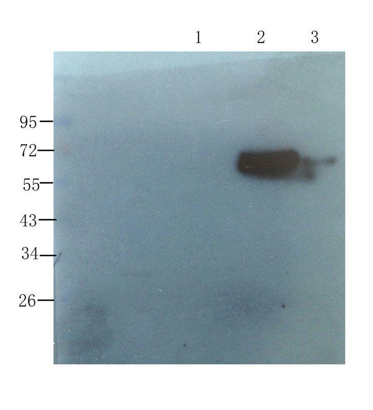 WB analysis of  mouse pancreas (lane 1), human breast cancer (lane 2), human mammary fibroma (lane 3) using Collagen X antibody (1 ug/ml)