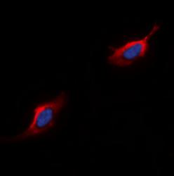 Immunofluorescence analysis of HepG2 cells using C5AR1 antibody
