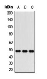 Western blot analysis of HepG2 (Lane 1), mouse brain (Lane 2), rat heart (Lane 3) whole cell lysates using C5AR1 antibody