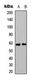 Western blot analysis of MCF7 (Lane 1), HeLa (Lane 2) whole cell lysates using Estrogen Receptor beta (Phospho-S105) antibody