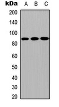 Western blot analysis of MCF7 (Lane1), NS-1 (Lane2), H9C2 (Lane3) whole cell using CPXM2 antibody