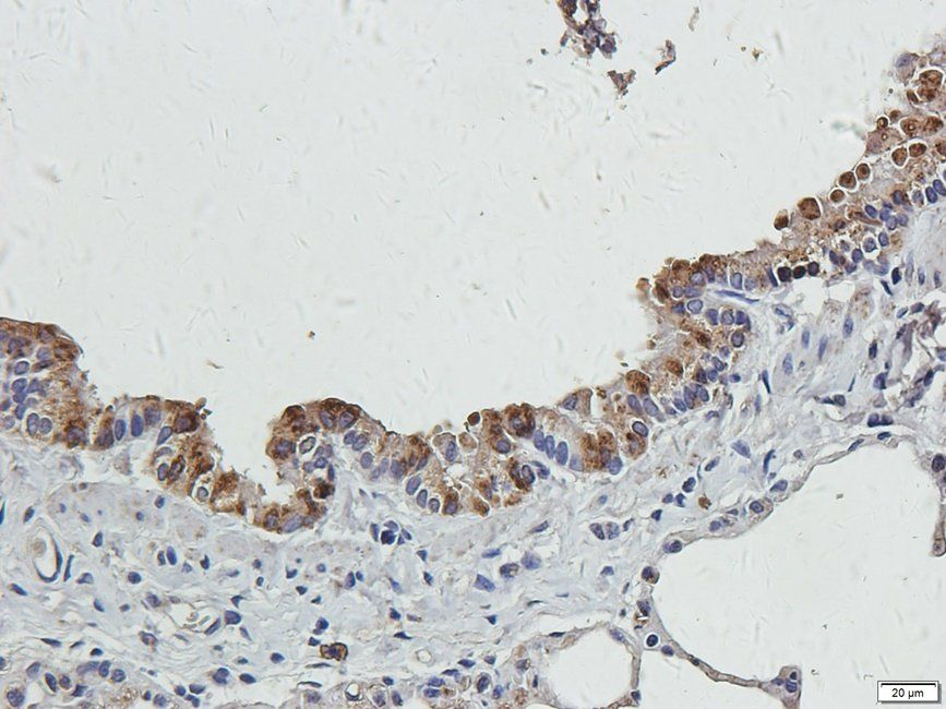 IHC-P image of rat lung tissue using anti-CRUM3 (2.5 ug/ml)