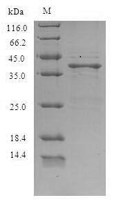 SDS-PAGE analysis of using Amphibian catesbeiana Saxiphilin Protein.