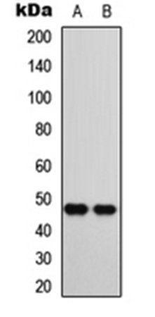 Western blot analysis of SHSY5Y (Lane1), A549 (Lane2) whole cell using CTBP1 antibody