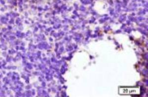 Immunohistochemical staining of Mouse Tumor Tissue using CTLA4 antibody.