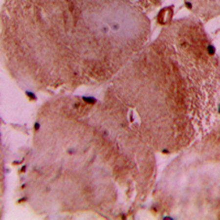 Immunohistochemical analysis of formalin-fixed and paraffin-embedded human heart tissue using cTnI antibody