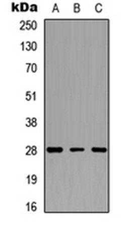 Western blot analysis of human heart (Lane 1), mouse heart (Lane 2), rat heart (Lane 3) whole cell lysates using cTnI antibody