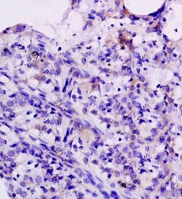 Immunohistochemical analysis of formalin fixed and paraffin embedded rat brain tissue using CXCL10 antibody