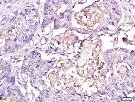 IHC-P of human esophagus cancer tissue (1:250 dilution) using CXCR3 antibody