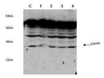 Western blot analysis of MCF-7 cells using Cyclin Dependent Kinase Antibody Sampler Kit