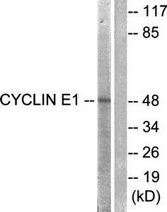 Western blot analysis of extracts from HeLa cells using Cyclin E1 antibody